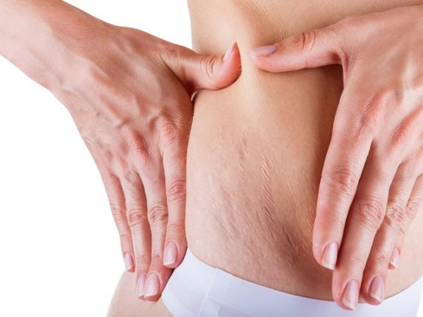 5 (FIVE) Nutritious Diet, That Can Remove Body Stretch Marks